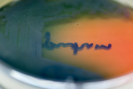 pyelonephritis: Close-up macro detail of a streaked colony of a multidrug resistant Pseudomonas aeruginosa on MacConkey agar, isolated from a burn patient with severe sepsis. Healthcare and infection concept. Stock Photo