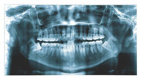 Röntgenaufnahme eines menschlichen Kiefers , Panoramazahnröntgenaufnahme aus einem Mund mit einem Zahnweisheitszahn krachte in einen Molaren.