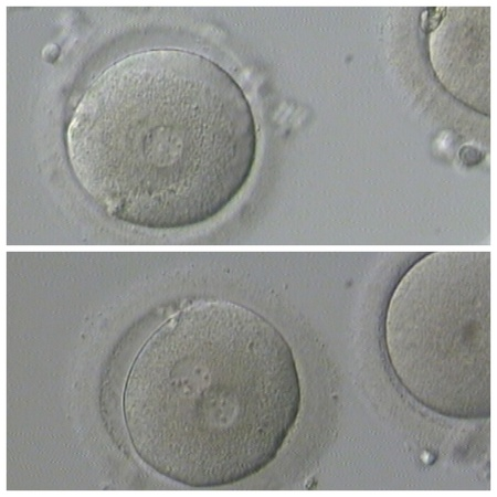 Human IVF Zdjęcie Seryjne