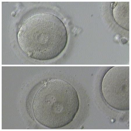 male sperm: Human IVF Stock Photo