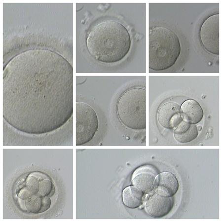 espermatozoides: FIV Humano Foto de archivo