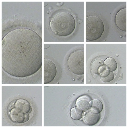 human sperm: Human IVF Stock Photo
