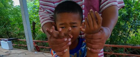 The boy have hand six finger are stand up for photographers take pictures at the village in the countryside of Thailand.Mahasarakham,Thailand,October 2015