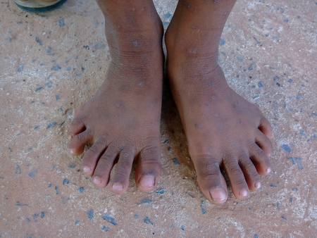 The boy have hand six finger and six toes are sitting for photographers take pictures at the village in the countryside.Mahasarakham,Thailand,October 2015