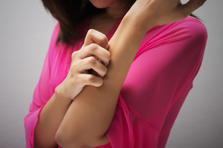 rash: Mujer rascarse el brazo. Foto de archivo