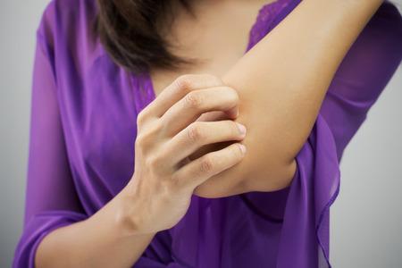 codo: Mujer rascarse el brazo