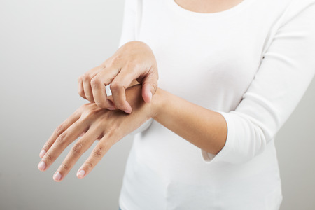 sarpullido: Mujer rascarse el brazo. Foto de archivo