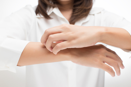 wrist pain: Woman scratching her arm Stock Photo