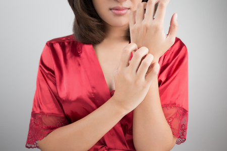 Woman scratching her arm. Stock Photo - 52586492
