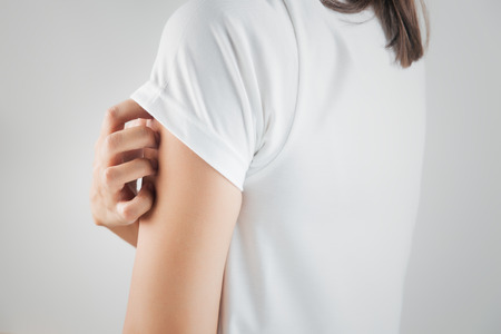 the fungus: Woman scratching her arm. Stock Photo