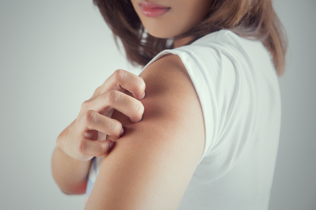 itchy: Woman scratching her arm. Stock Photo