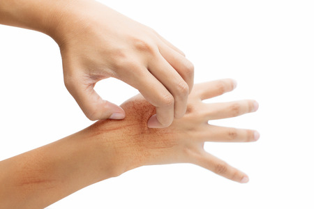 itch: Women scratch the itch with hand, isolate on white background Stock Photo