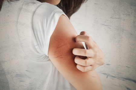 Woman scratching her arm. Stockfoto