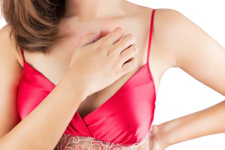 rash: Mujer rascarse la picazón en el pecho Foto de archivo