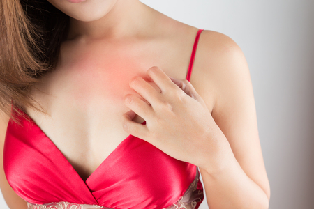 rash: Woman scratching her itchy chest