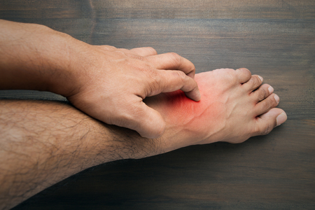 unsanitary: Man scratch the itch with hand , itching, Foot, Concept with Healthcare And Medicine. Stock Photo