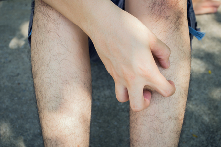 rash: Man scratch the itch with hand, Leg, itching, Concept with Healthcare And Medicine.