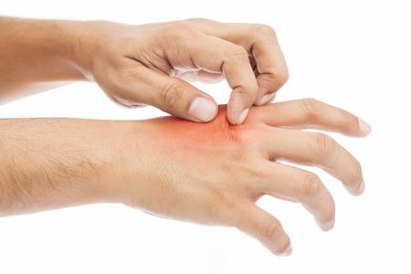 hongo: Las personas se rascan la picazón con la mano. picazón, concepto con Asistencia sanitaria y medicina.