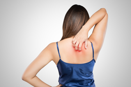 Woman scratching her itchy back with allergy rash Stockfoto