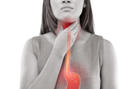 Donna che soffre dal riflusso acido o dal heartburn-Isolated su fondo bianco Archivio Fotografico - 86863614