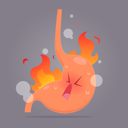 Illustration from acid reflux or heartburn, Cartoon vector, Concept with internal health Illustration