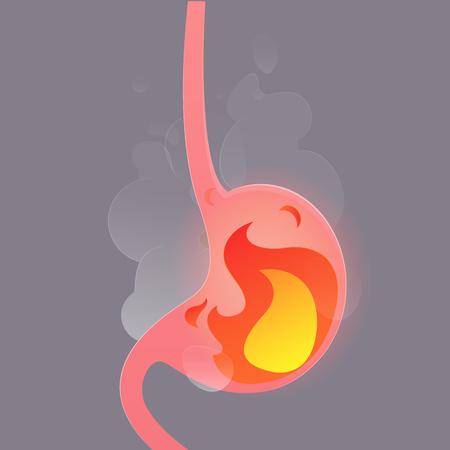 Illustration from acid reflux or heartburn, Cartoon vector, Concept with internal health Illustration