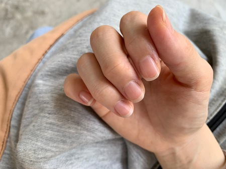 The fingers of the woman are dry The nail edge is flaky, Should be applied to the cream, Dry skin allergy Stock fotó