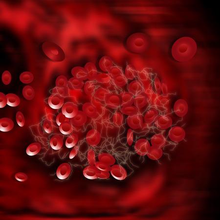 血液凝固の赤い血球のイラストは赤とフィブリン蛋白質の鎖は色でオフホワイト
