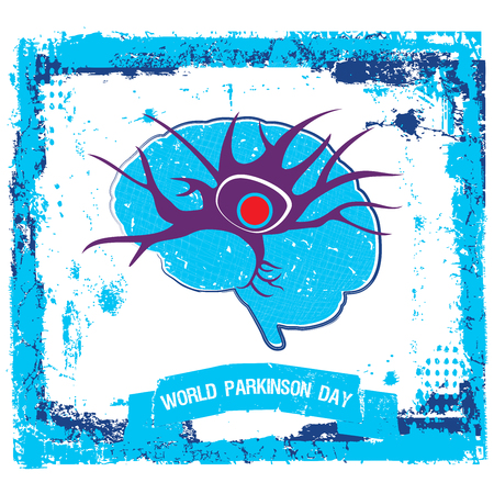 An abstract illustration of Parkinsons disease with a single neuron and an abnormal protein structure in brain on a   blue and white grungy background