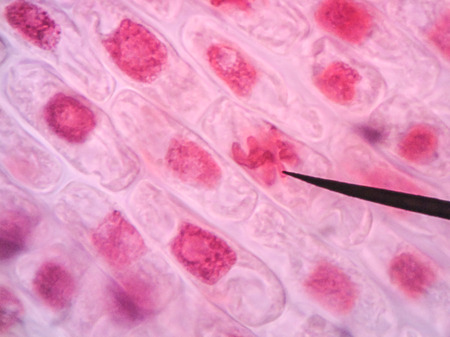 mitosis: Living healthy cells (mitosis) - original micro-photo of tissue under a microscope Stock Photo