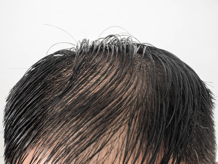 Close up Some hairstyles of many man serious hair loss problem for hair loss concept or health care shampoo product on white background Stock Photo