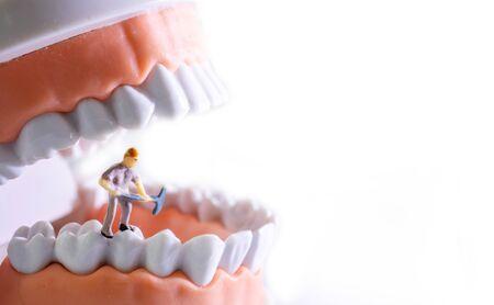 Kleinfigurige Arbeiter, die Zahnmodell als Medizin- und Gesundheitskonzept reinigen. Regelmäßige Kontrollen sind für die Mundgesundheit unerlässlich.