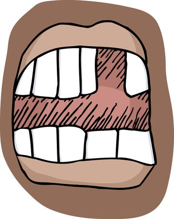 Close-up illustration of an open mouth with a missing tooth Ilustração