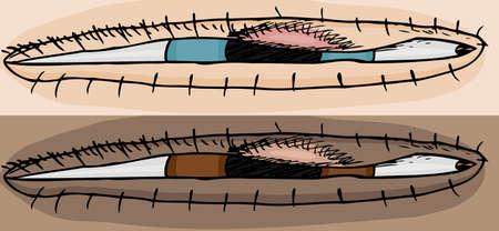 wart: Two skin tones of stye on human eye