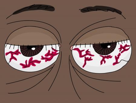 Close up of a pair of human bloodshot eyes