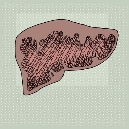 human liver: Cartoon cross section of diseased human liver organ Illustration