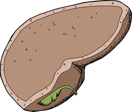 galla: Singolo isolato fegato umano e della cistifellea