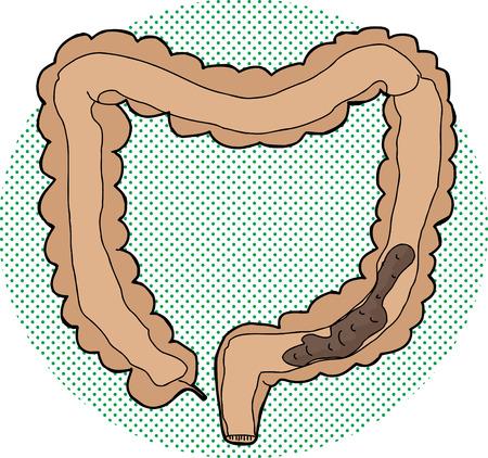 Hand drawn bowel inside human large intestine Illustration