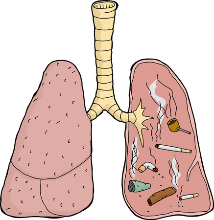 substance abuse: Isolated dirty lungs with cigarettes and tobacco Illustration