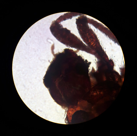 Ixodes tick, view from the microscope. mite in the laboratory