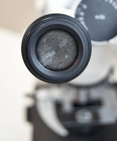 View in the microscope on fungi candida albicans. Selective focus on the eyepiece