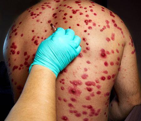 traitement des éruptions cutanées sur le corps masculin. Zona, maladie, zona, virus varicelle-zona. éruption cutanée et cloques sur le corps.