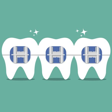 Vector teeth braces flat illustration