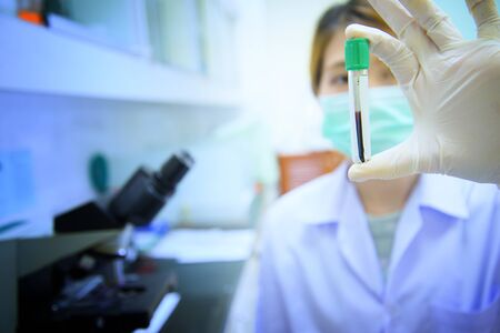 blood test tube in asia doctor hand Stock Photo