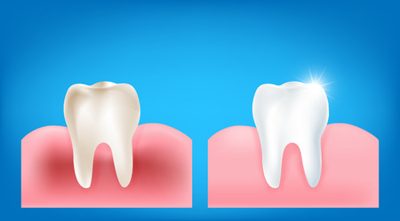 dientes sucios: Collection of dirty tooth and gum compare with clean and strong  white tooth wiht glittering bright light element on blue background vector illutration