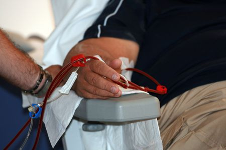 shunt: close up of an arm with dialysis shunt Stock Photo