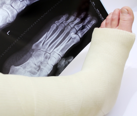 wounded: broken foot in a cast with xray of broken foot behind Stock Photo