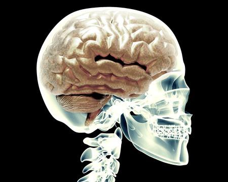 x-ray schedel met hersenen die op zwarte