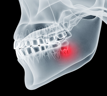 x-ray image of a jaw with teeth with one in pain