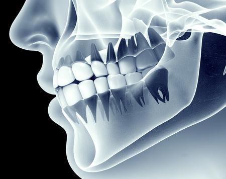 muela: imagen de rayos x de una mandíbula con dientes.